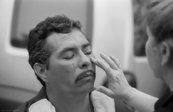 Actor Glen Gould receives a post fight look.